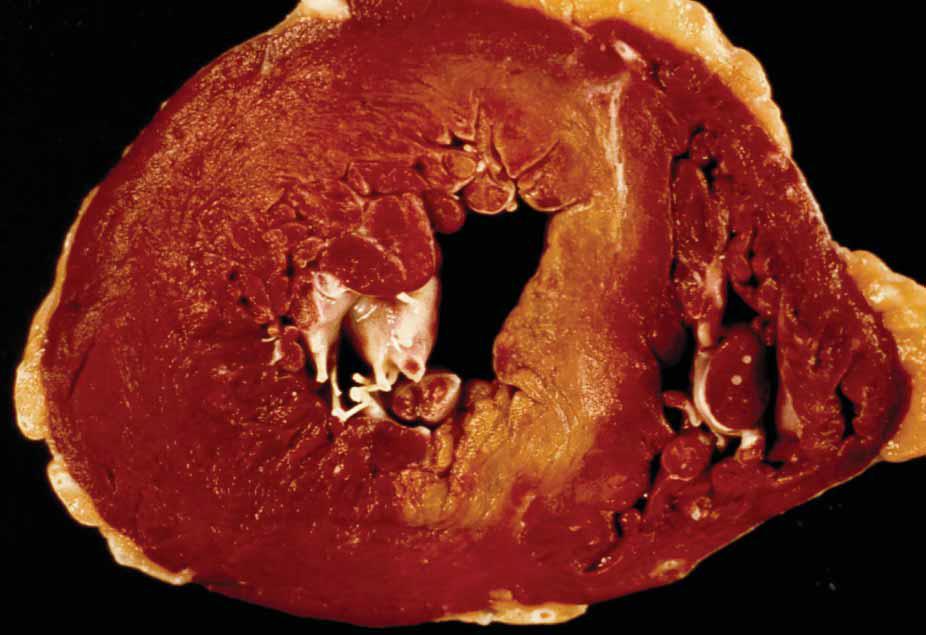 Histopatología: PATOLOGIA CARDIOVASCULAR