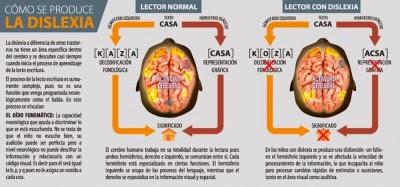 La dislexia, infografía
