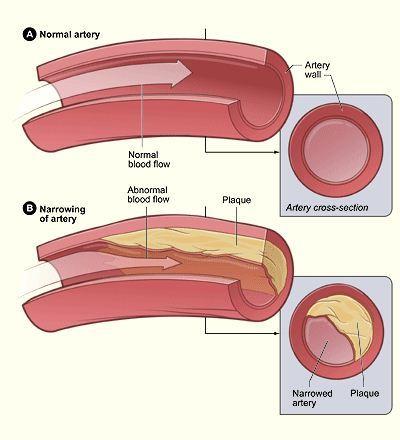 Arteri normal dan arteri yang telah mengalami penumpukan plak