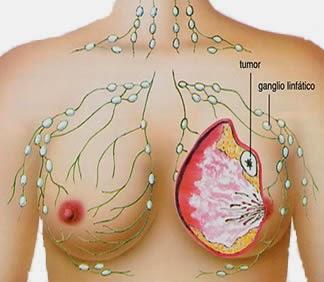obat tradisional kanker payudara stadium 1, obat kanker payudara, pengobatan kanker payudara
