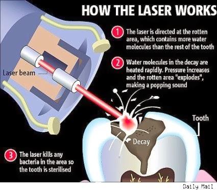laser filling