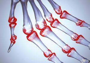 Μπορεί να αντιμετωπιστεί δίχως φάρμακα η ρευματοειδής αρθρίτιδα;