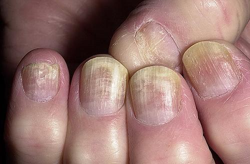 Targhe efficaci a un fungo di risposte di unghie