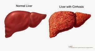 Jual Obat Penyembuh Penyakit Hepatitis B