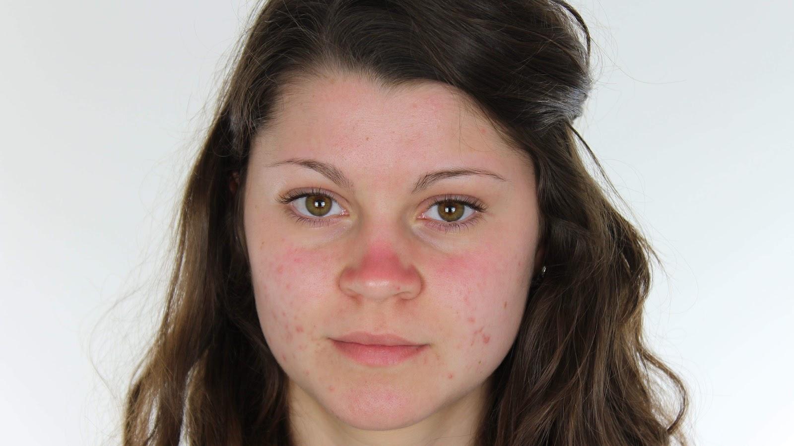 Face Pimples Propecia