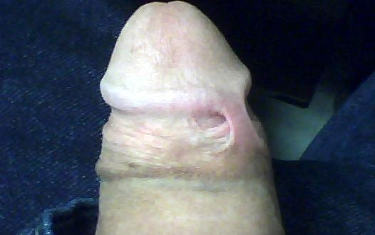 skin from circumcised adult penis