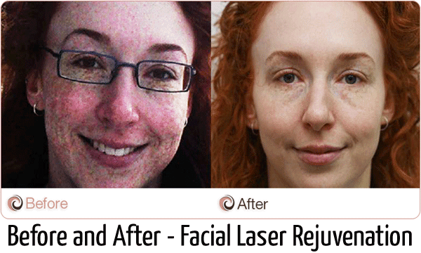 facial laser rejuvenation