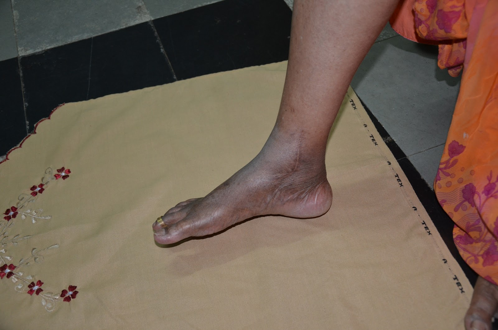 TALUS FRACTURE IN A DIABETIC - FUNCTIONAL OUTCOME