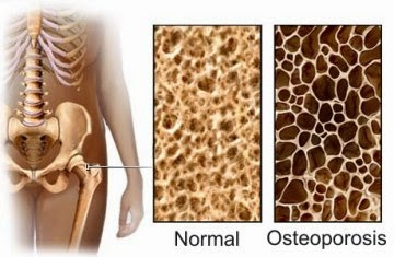 Gejala osteoporosis, pengapuran tulang , Cara Pengobatan Osteoporosis