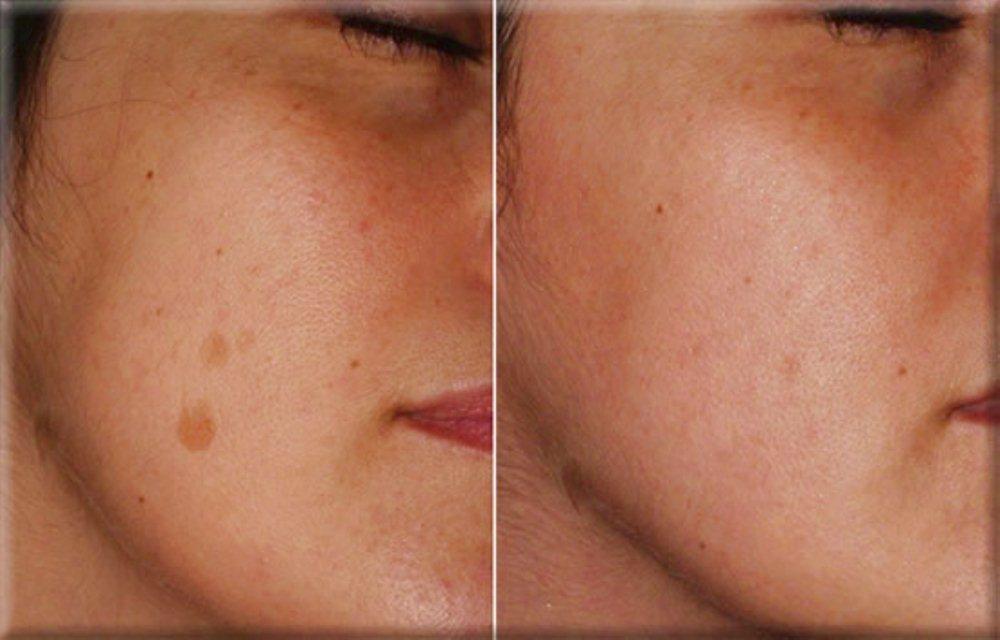 La medicina per candeggiare di pelle di faccia