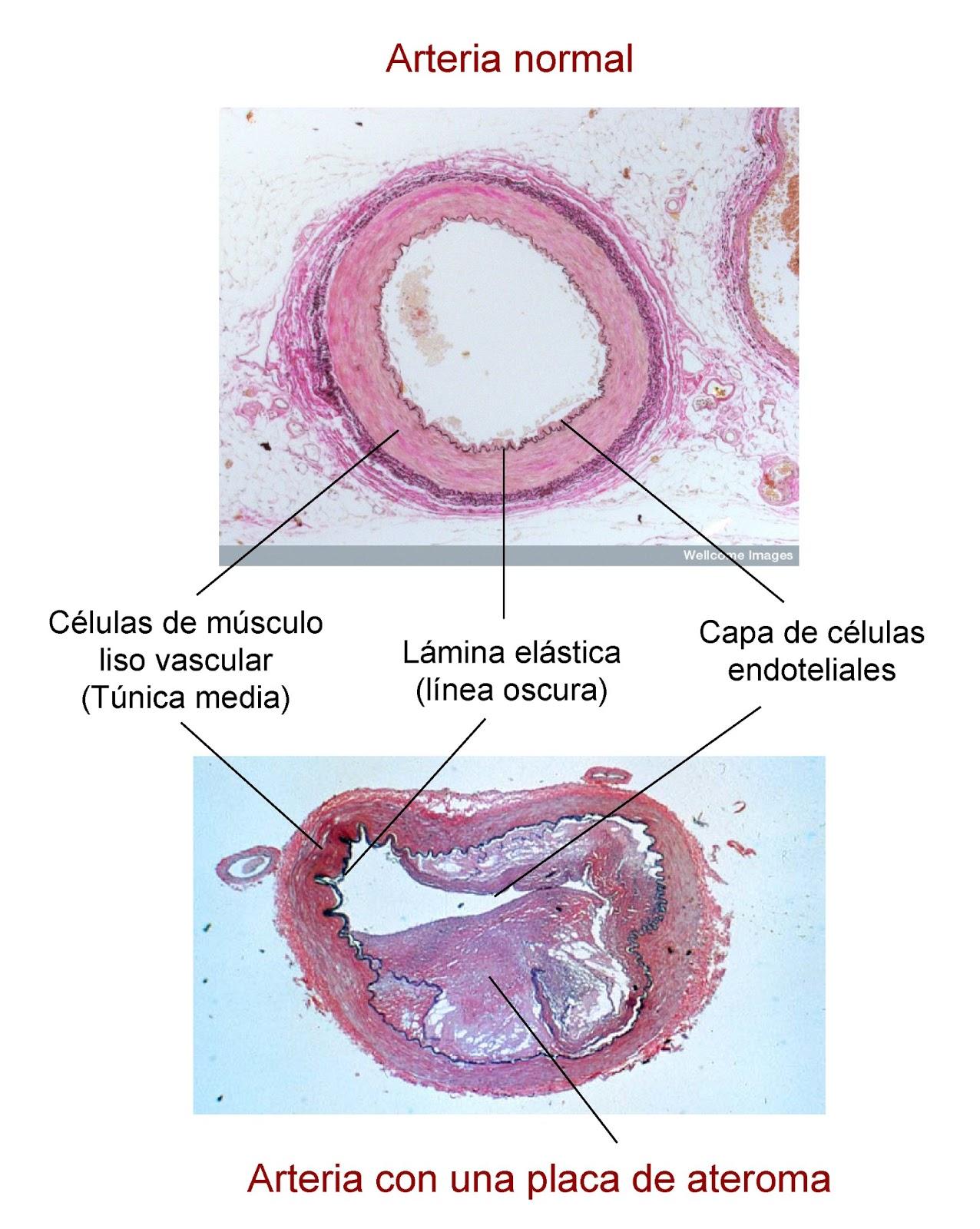 Arteria con una placa de ateroma en su interior