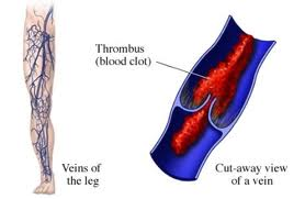 causes superficial thrombophlebitis phlebitis