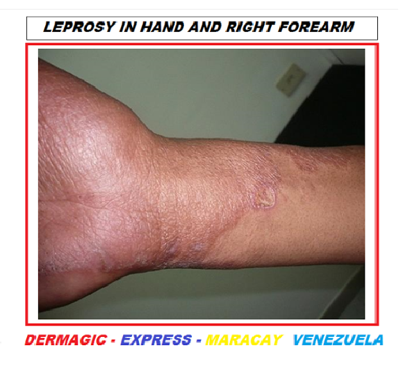 LEPROSY ON THE PROVIDENCIA ISLAND