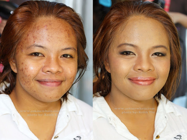 a photo of before and after photo on makeup for acne marks