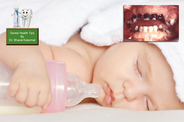 Bottle feeding danger for baby milk teeth advised by jamnagar dental surgeon