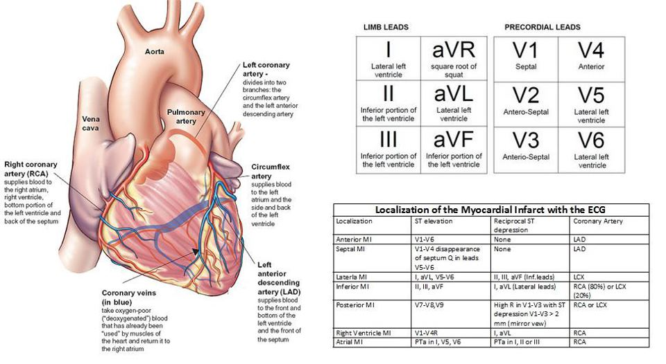 Medical Addicts Localisation Of Myocardial Infarction With Ecg