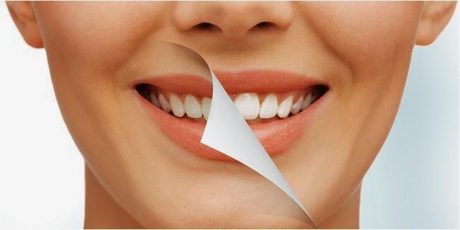 Cara Memutihkan Gigi Kuning Dengan Cepat Secara Alami