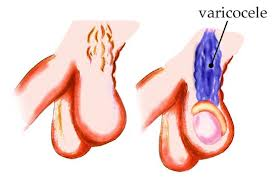 order viagra online from india