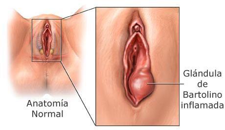 Abceso en la vagina