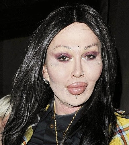 Pete Burns Biography - Peter Jozzeppi Burns Died
