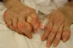 Nấm lim xanh hỗ trợ chữa trị bệnh gout