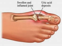 lower uric acid by diet safe food for gout sufferers how can you tell if you have gout in your foot