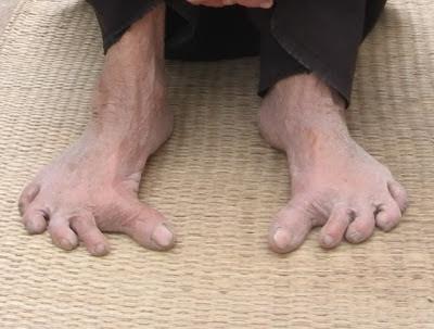 Ngón chân cái giao nhau khi chụm lại