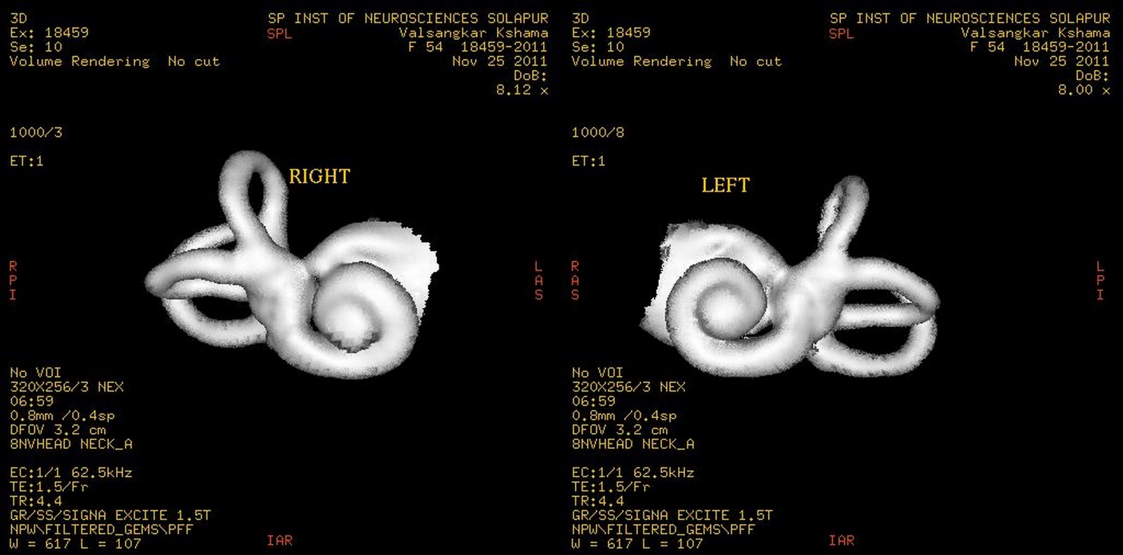 Dr Balaji Anvekars Neuroradiology Cases Mri 3d Inner Ear