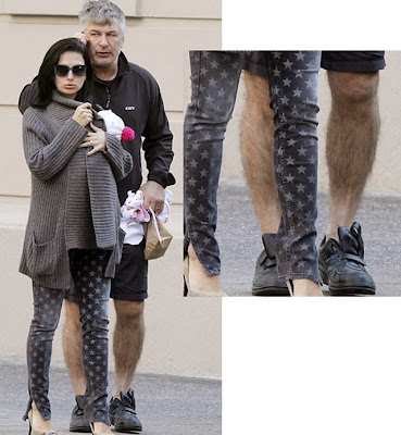 Alec Baldwin hot wife, ugly hairy legs
