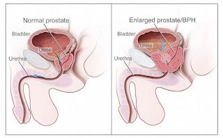 Tentang Penyakit Kanker Prostat