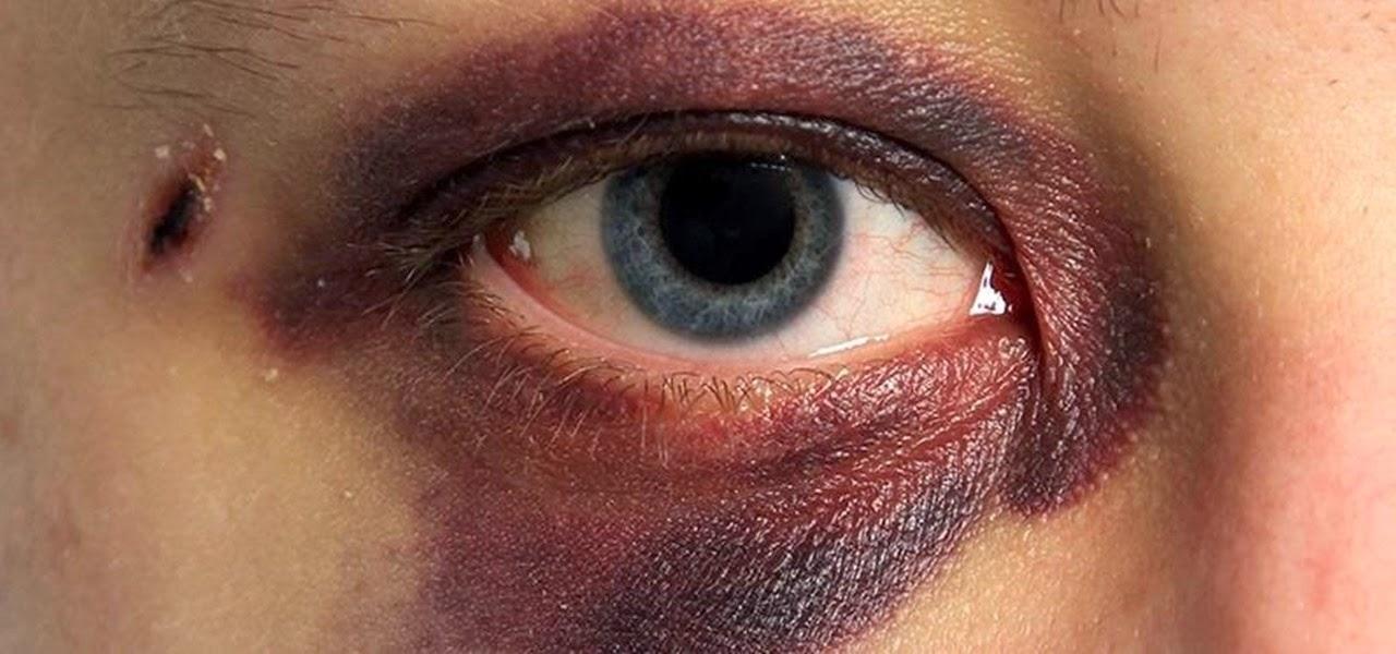 К чему снится синяк под глазом у