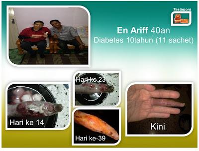 PRO RIGHT BANTU PESAKIT DIABITES