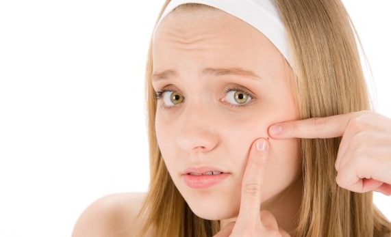 Acne is a skin problem that can vary from mild to long-term