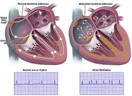 what is the difference between atrial fibrillation and atrial flutter