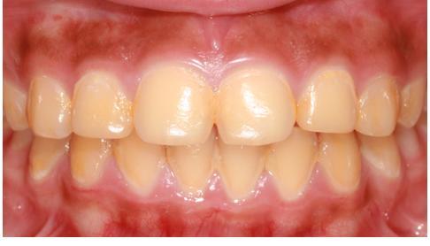 Adakah Gigi Anda Sesuai My Smile Home Kit Teeth Whitening