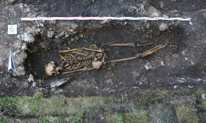 Un cavalier du VIe siècle avec une prothèse orthopédique