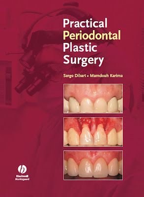 Practical Periodontal Plastic Surgery - 1001 Ebook - Free Ebook Download