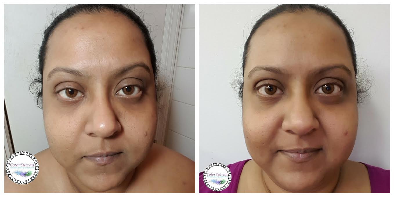 how long does it take for personal microdermabrasion to work
