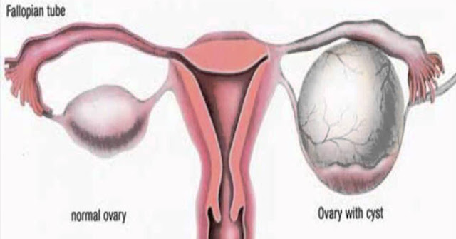 8 EASY WAYS TO SHRINK YOUR OVARIAN CYSTS NATURALLY