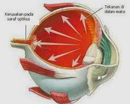 Cara Menyembuhkan Glaukoma Akut Pada Mata