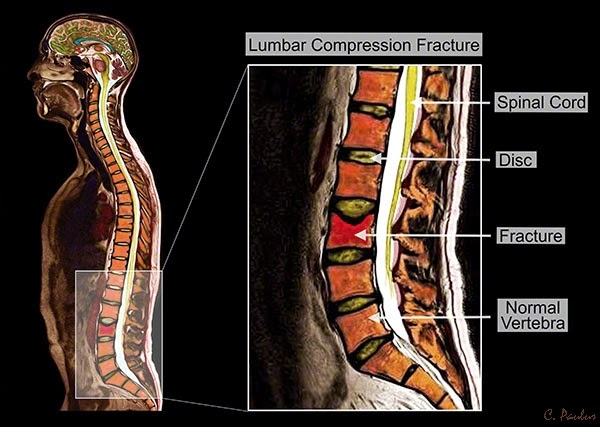Lumbar Compression Fracture shown on a Color MRI
