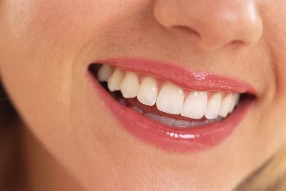 التخلص من تسوس الاسنان و اصفرار الاسنان