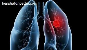 Penyebab kanker paru-paru