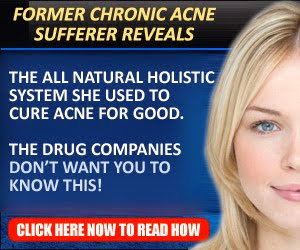 Acne No More