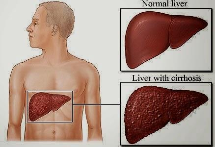 Obat Liver Bengkak Tradisional