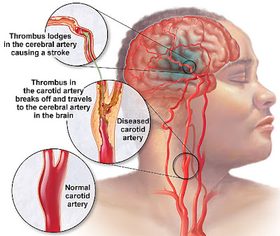 sign and symptoms of Stroke