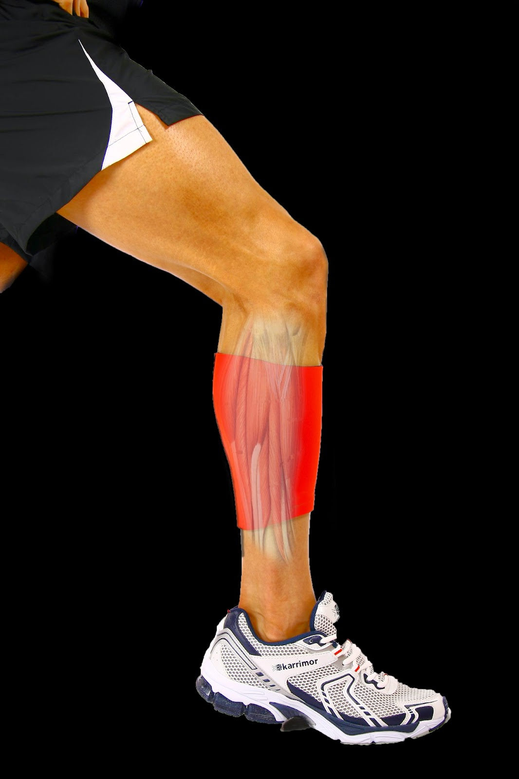 Compression Support Treatment of Calf Injury