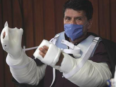 double arm transplant of mexican man
