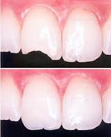 diente roto curacion relleno resina composite