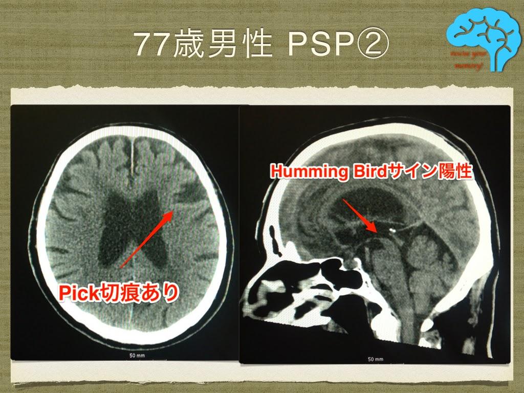 進行性核上性麻痺(PSP) 頭部CT